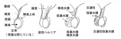 Images of 陰嚢腫大 - JapaneseClass